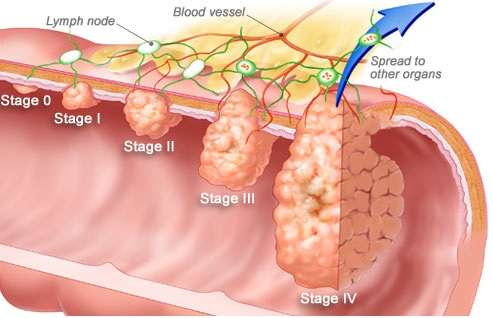 winslow_rm_illustration_of_colorectal_cancer_stages.jpg