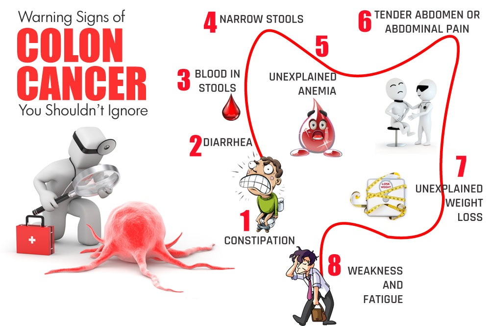 colon-cancer-rev.jpg